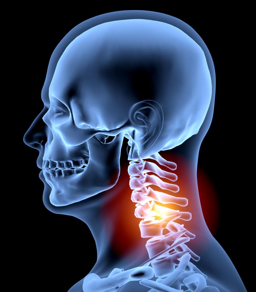 Whiplash chiropractor -Whiplash pain relief at Rittenhouse Square Chiro.