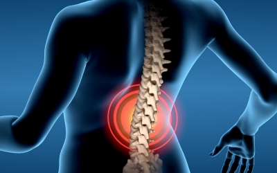 Back Pain and Epidurals